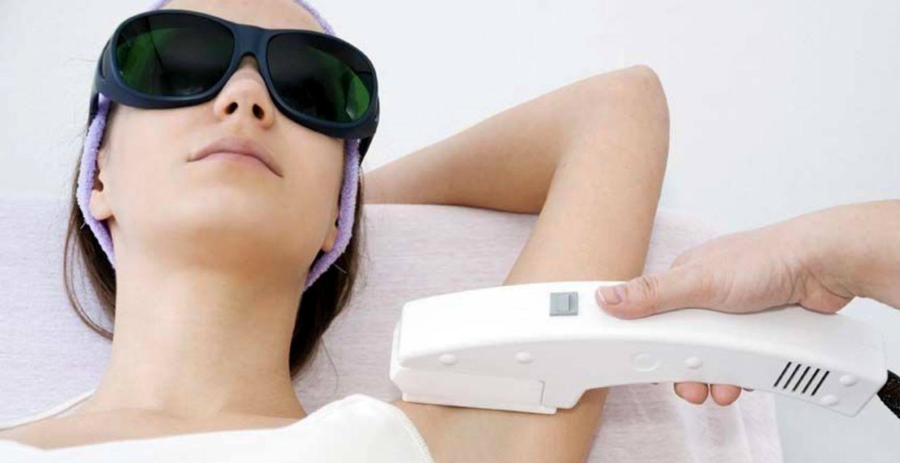 Razones para elegir el láser y no la IPL para la depilación permanente