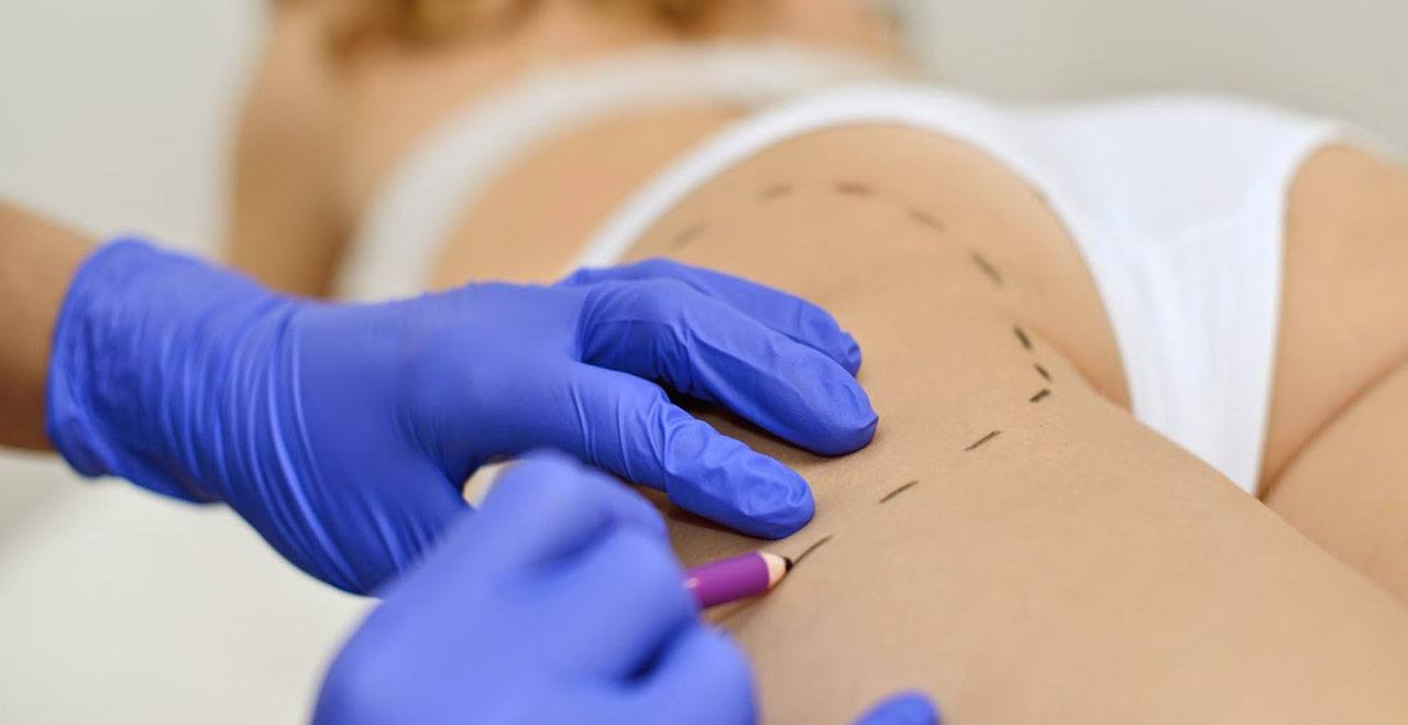 Intralipoterapia alternativa a la Liposucción