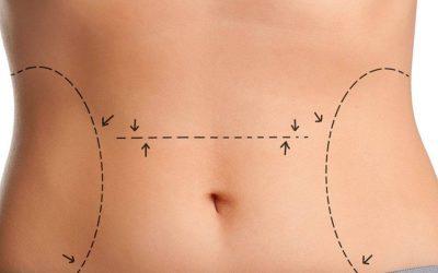 Lipoescultura sin cirugía o remodelación corporal