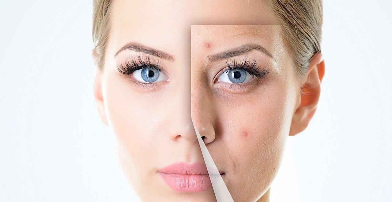 Ácido salicílico para tratar el acné