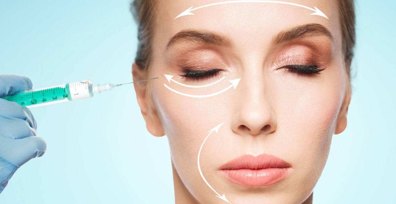 Áreas para los rellenos faciales